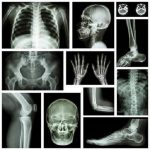 Download musculoskeletal x-ray interpretation GUIDE 1.0 APK Full